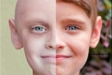 همه چیز در مورد بیماری سرطان